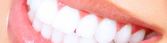 Header - Porcelain Veneers